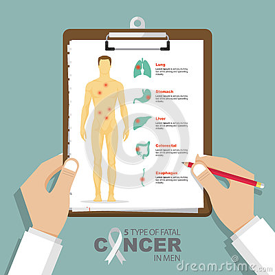 Free Infographic For Top 5 Type Of Fatal Cancer In Men In Flat Design. Clipboard In Doctor Hand. Medical And Health Care Report. Royalty Free Stock Images - 83490999