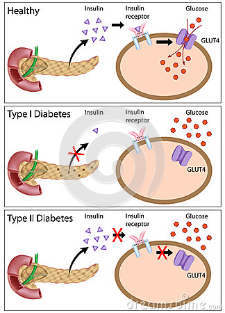 Insulin action and diabetes types