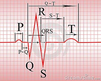Intervals, compex of  ECG