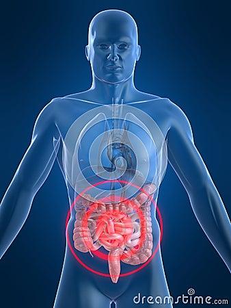 Intestines inflammation