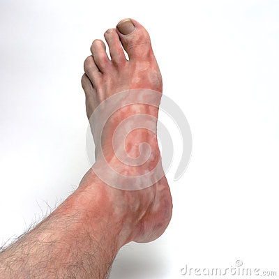 Itchy foot