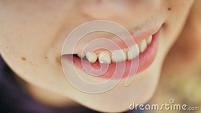 Jong meisje die met een diamant op een tand glimlachen Skyce op de tanden Het tanddiamant doordringen stock video