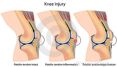 Jumper s knee anatomy