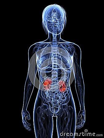 Kanker van de nier