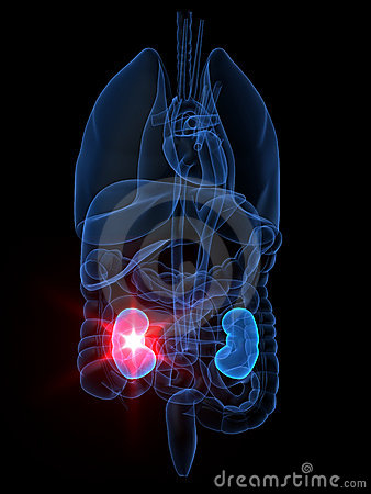 Free Kidney Failure Royalty Free Stock Images - 3401259