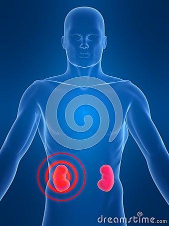 Kidney inflammation