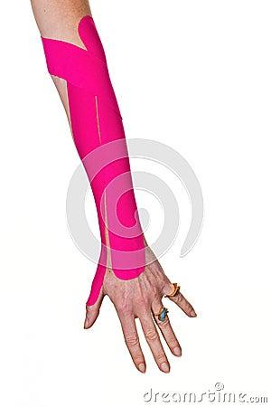 Kinesiotape on a tennis elbow