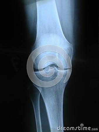 Free Knee Stock Image - 7221