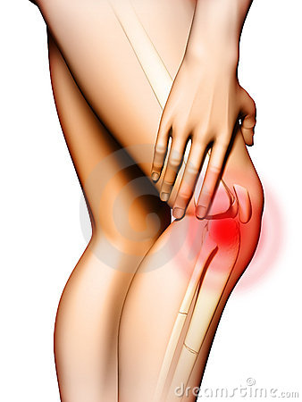 Free Knee Pain Stock Images - 17498214