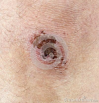 Knee Scrape, Scab, Scar, Injury Closeup Detail