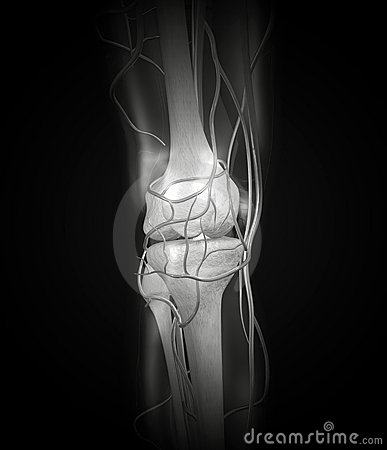 Knee X-ray Arteries, Bones