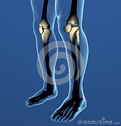 Knee x-ray, pain, human body anatomy