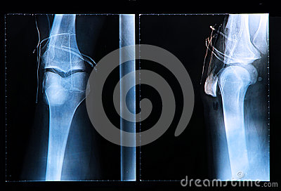 Knee X-ray after arthroscopic surgery