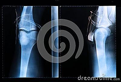 Knee X-ray after arthroscopic surgery