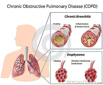 La maladie pulmonaire obstructive continuelle