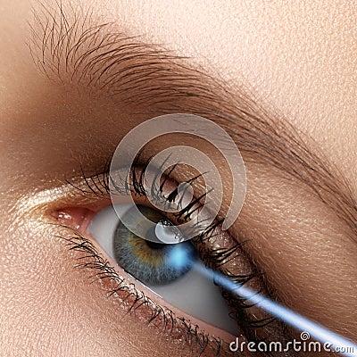 Free Laser Vision Correction. Woman S Eye. Human Eye. Woman Eye With Stock Photos - 65736553