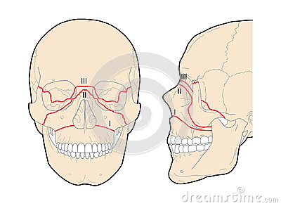 [Image: le-fort-skull-fractures-24901408.jpg]
