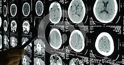 les médecins 4k étudient le film radiographique de cerveau de crâne pour l'analyse hôpital médical de santé banque de vidéos