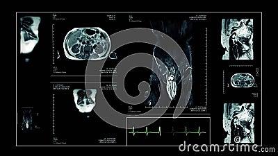 Levend het aftasten menselijk lichaam van MRI stock videobeelden