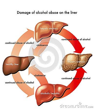 Aangetaste lever door alcohol