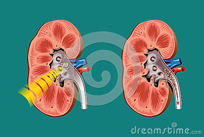 Lithotripsy in kidney stones