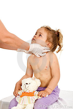 Little girl with contagious disease at the doctors