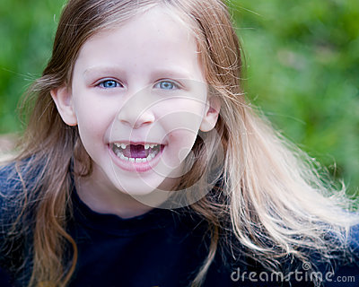 Little Girl missing two Front Teeth