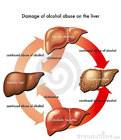 Free Liver And Alcohol Royalty Free Stock Photography - 23090587