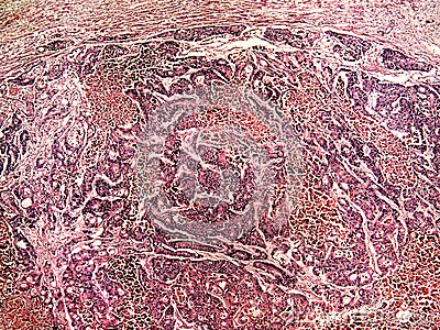 Liver cancer of a human