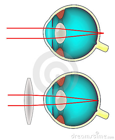 Longsighted human eye diagram