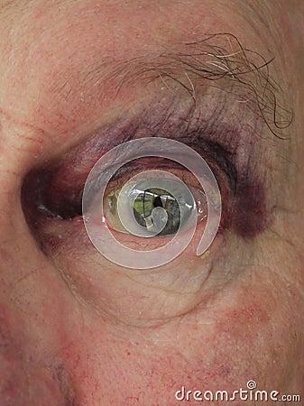 Älterer Mann: gequetschtes blaues Auge