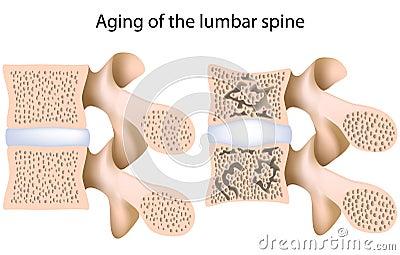 Lumbar spine osteoporosis