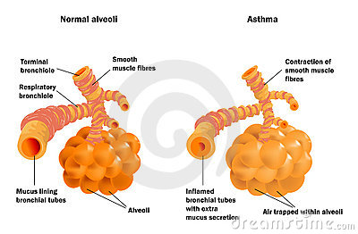 Lung alveoli normal and asthma