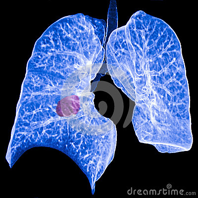 Free Lung Cancer CT Royalty Free Stock Images - 34865859