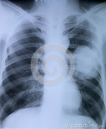 Free Lung Cancer:X-ray Image Of Chest Stock Photo - 33787010