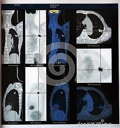 Lungcancer: PET--CTbild av bröstkorgen