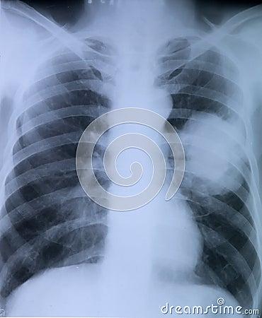 Lungcancer: Röntgenstrålebild av bröstkorgen