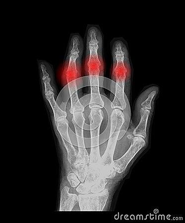 Mão com artrose