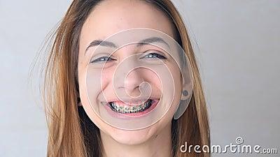 Mädchen mit Halter für Zähne stock footage