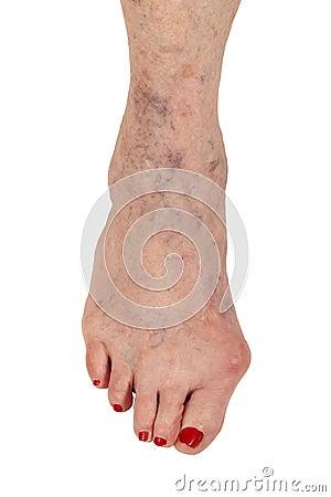 Médico: Artrite reumatóide, dedo do pé do martelo e veias varicosas