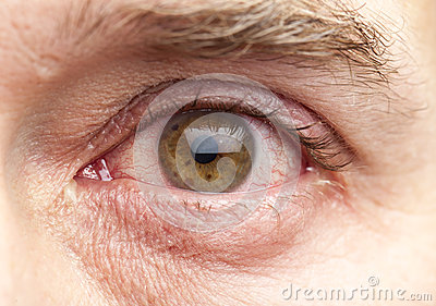 Hypoallergenic Eye Makeup Blepharitis likewise Royalty Free Stock Image Macro Shot Human Eye Image28690336 besides The Curse Ol Blue Eyes Your Eye Colour Increase Risk Infection Wearing Mascara Protect You also Lina truman further 207. on old mascara eye infection