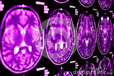 Magnetic Resonance of Brain, blue MR