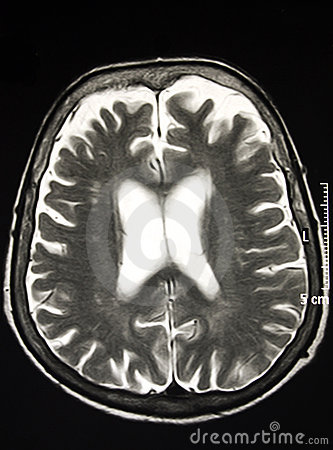 Magnetic Resonance Of Brain, MR