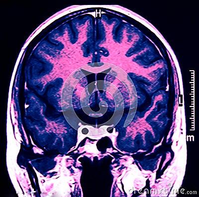Magnetisk mr resonans för blå hjärna