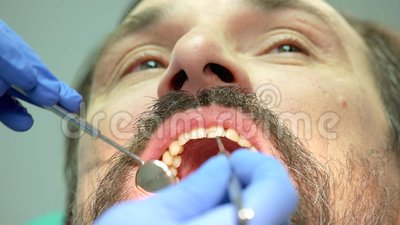Main de dentiste avec l'outil clips vidéos