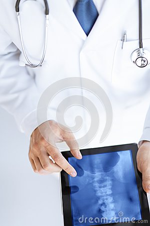 Male doctor holding tablet pc with x-ray