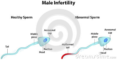 Male Infertility Stock Vector  Image  41897994