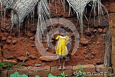 Malnourished Children in India Editorial Photo