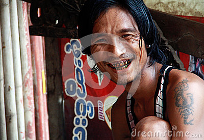 Man with black teeth smile Editorial Image