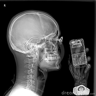 Man and cellphone under x-ray